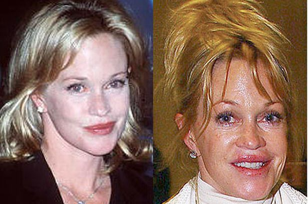 melanie griffiths plastic surgery gone wrong